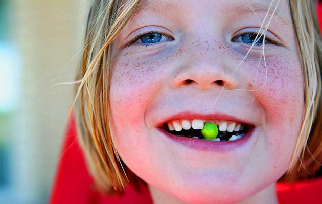 Vaikui krenta dantys